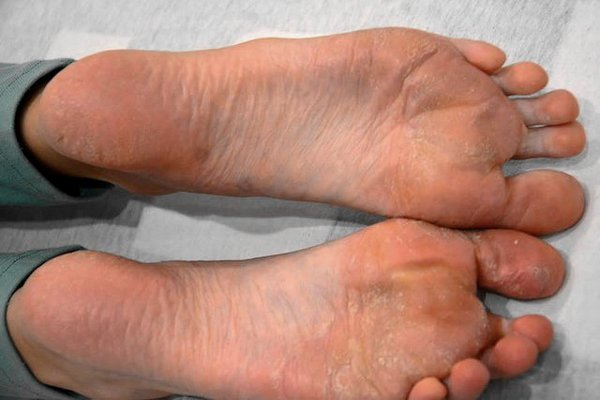 nohy psoriáza - 2 týdny po terapii