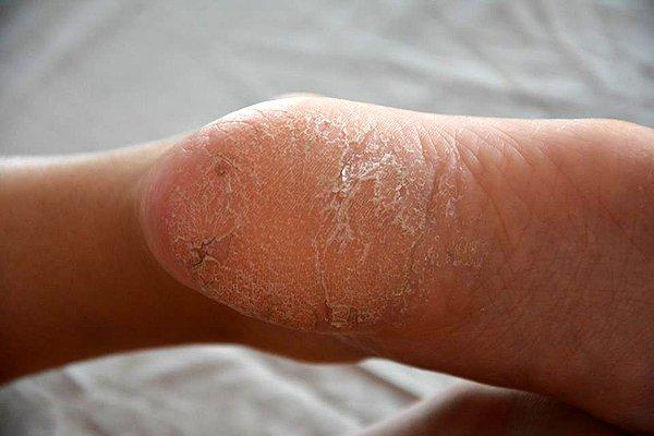 nohy psoriáza - před terapií